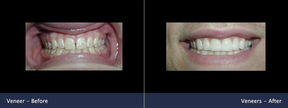 before-after05-veneers