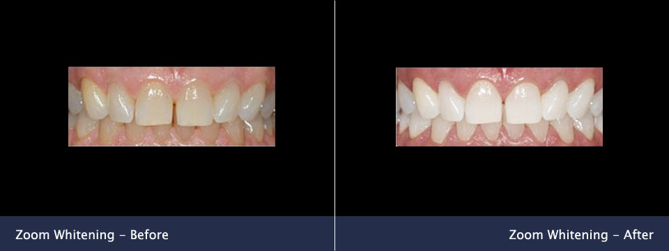 before-after08-zoom