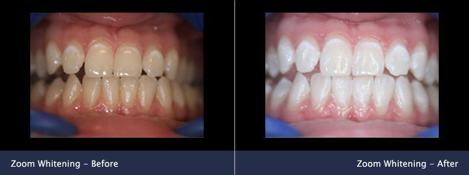 before-after04-zoom