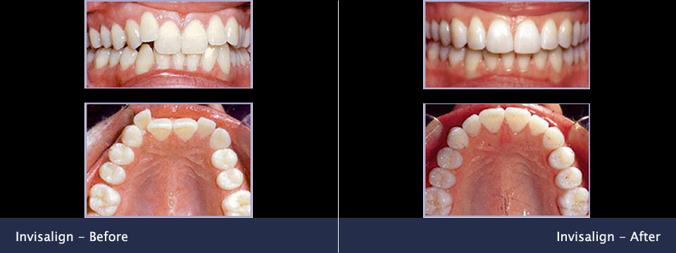 before-after07-invisalign
