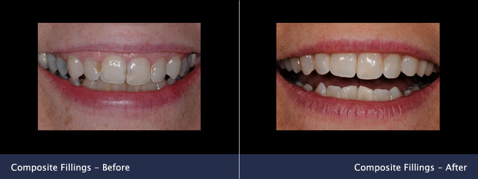 before-after09-composite-fillings