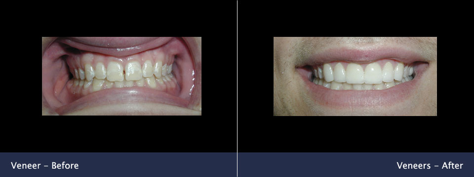 before-after05-veneers
